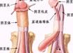 男性包茎整形图片对比